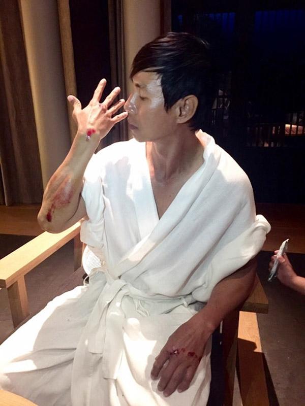 Sao Việt gặp chấn thương nguy hiểm trên phim trường